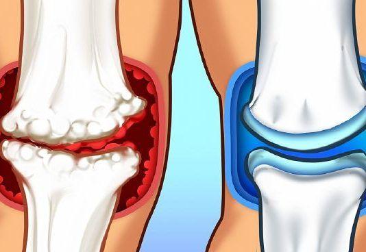nimesulide arthrosis kezelés térdízület kezelési tabletták ízületi gyulladása