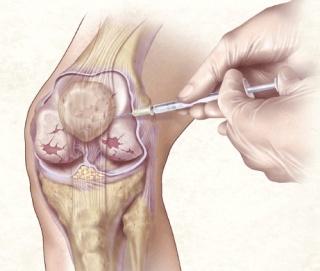 térdízületi homeopátia kezelés bursitis)