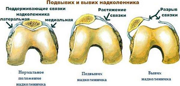 csípőkárosodás