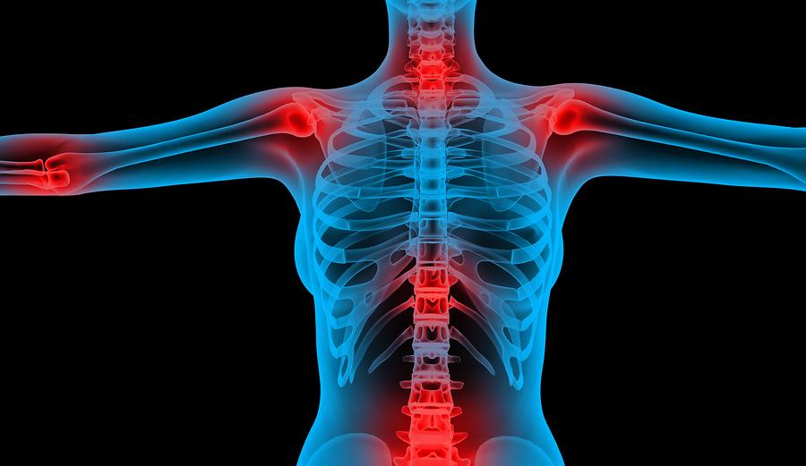 a jobb vállízület kapszula károsodása torna a bokaízület fájdalmáról