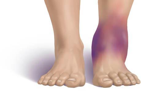 a bokaízület szinovitisz