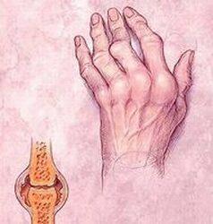 artritisz artrózis kezelése zselatinnal
