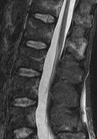 gerincvelő artrózisa, ha nem kezelik)