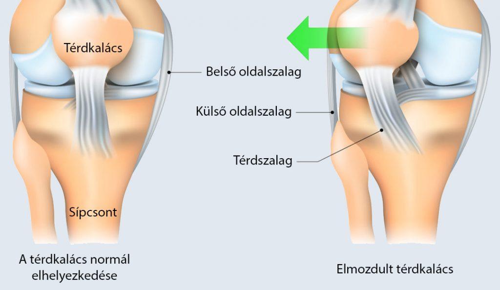 a térdízület belső és külső meniszciájának károsodása