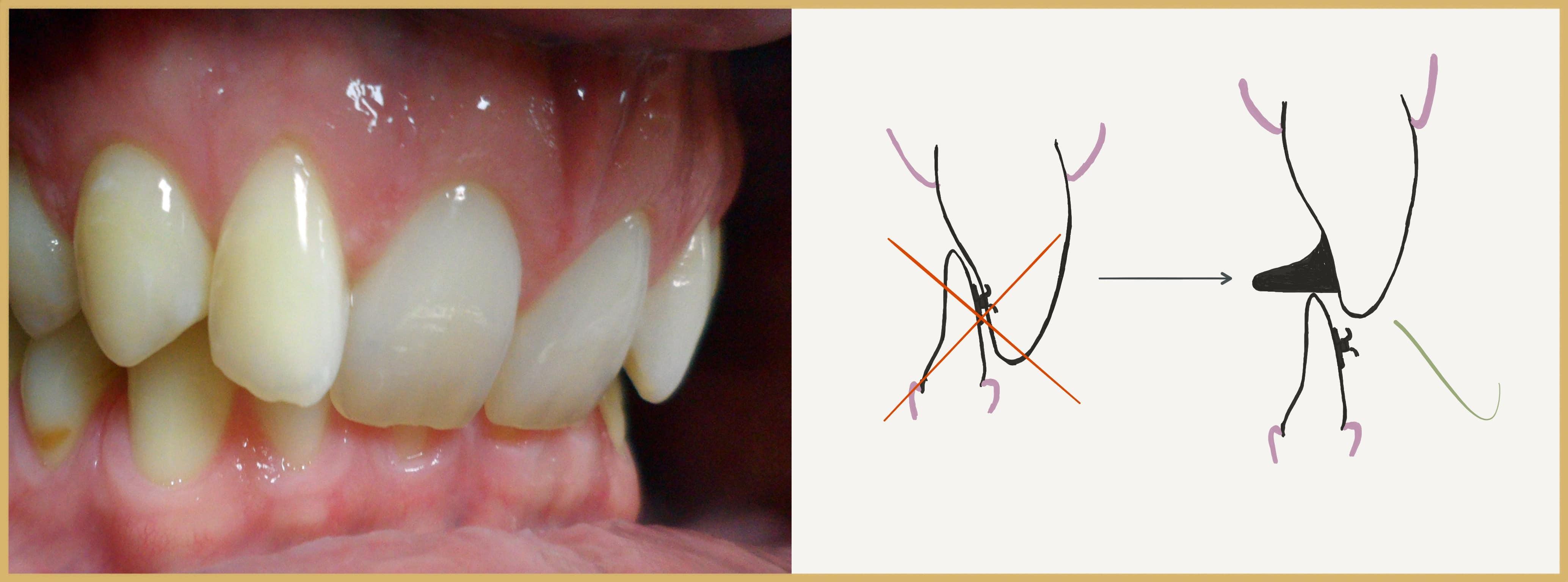 szent segít az ízületi betegségben a coxarthrosis tünetei a csípőízületek artrózisának kezelése