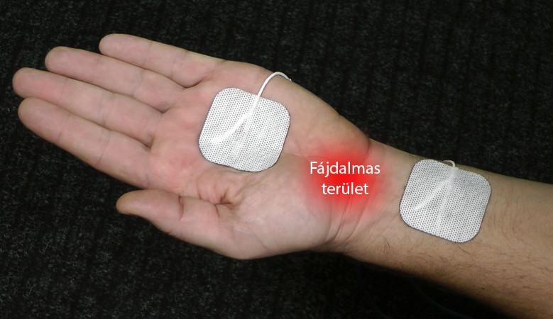 mézcsomagolások ízületi fájdalmak kezelésére)