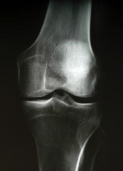 hogyan kezeltem a térd artrózisát