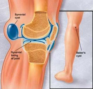 térdízület kezelés szinoviális membránjának törése hogyan lehet eltávolítani a fájdalmat a lábak ízületeiben