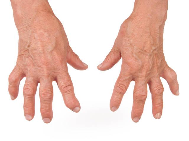 térd epicondylitis hogyan kell kezelni a lábak és a karok ízületeiben fellépő fájdalom oka