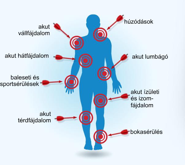 trambulin ízületi fájdalmak esetén