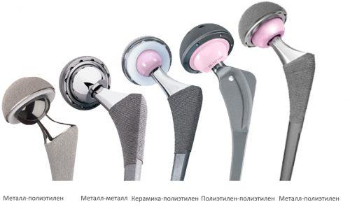 csípőbetegség nők coxarthrosisban)