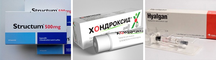 glükozamin-kondroitin vagy teraflex)