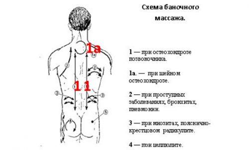 csípőízületek artrózisa 3. rész
