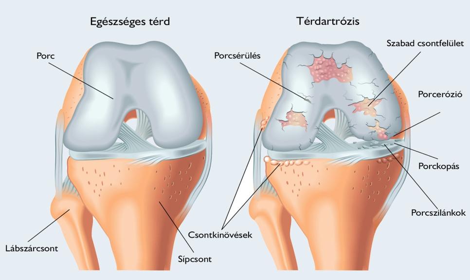 térdízület éles fájdalma)