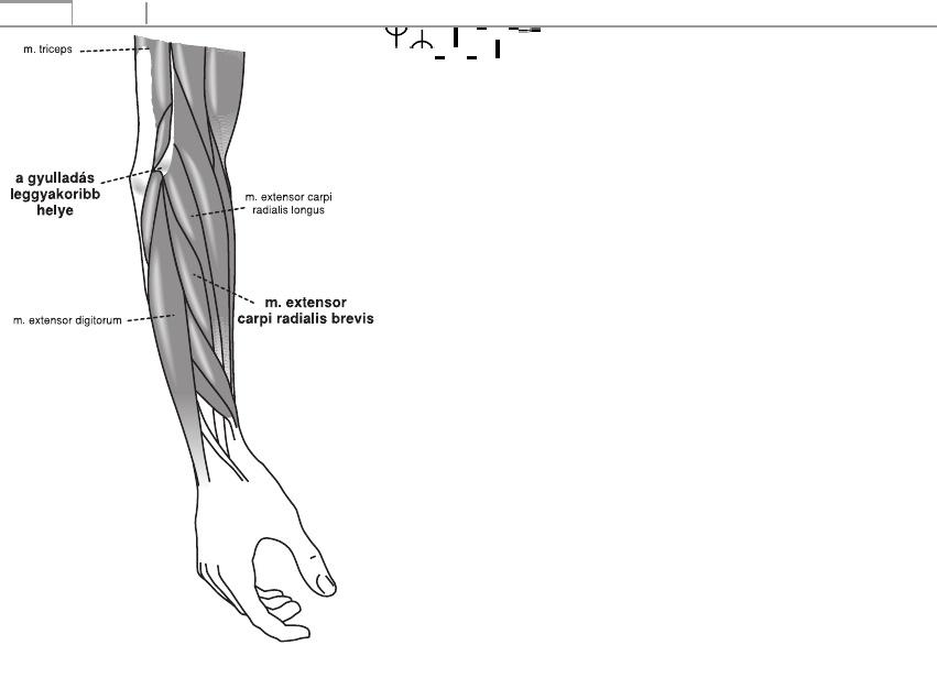 artrózisos kezelés a vállízület torna