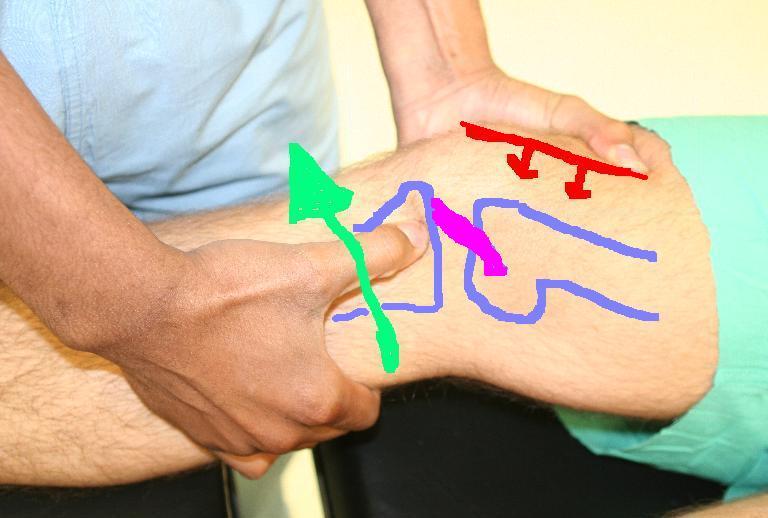 térdízületi kezelés 3 4 fok)
