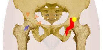 fájdalom a csípőízület nyugalomban