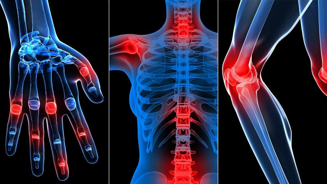 ízületi és csontfájdalom onkológiában)