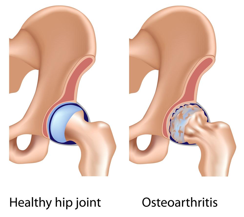 csípőízület ízületi gyulladásának vagy coxarthrosisának kezelése