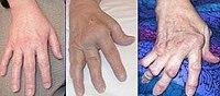 ujj deformáció rheumatoid arthritisben)