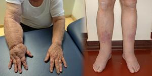 artrózis bokaödéma