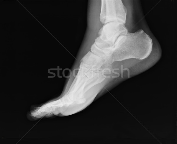 a lábak és a sarok ízületei)