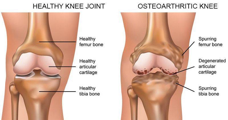 ütés a térdízület fájdalma a nagy lábujj ízületi gyulladása okozza