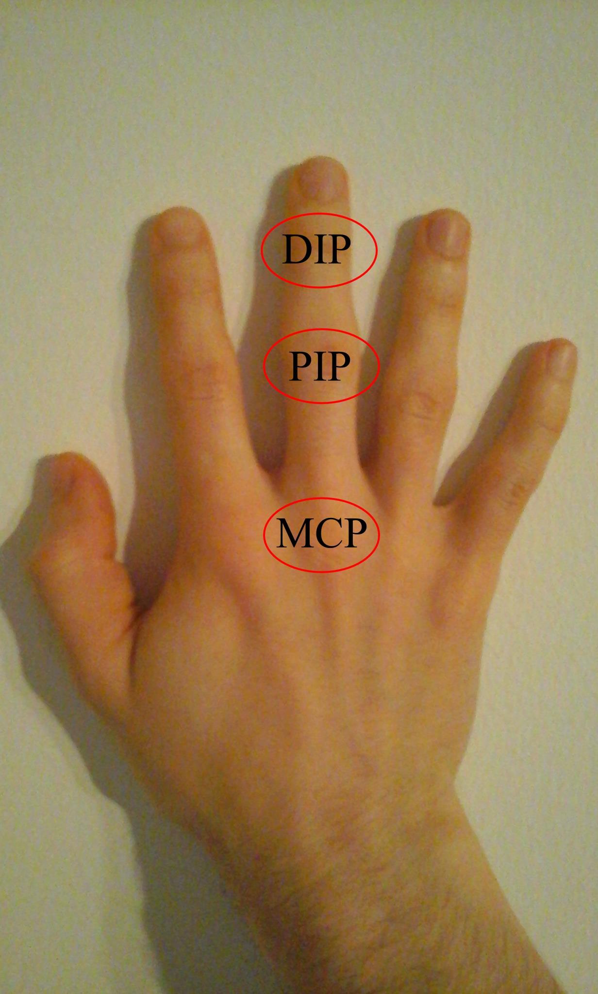 a bal kéz ujjainak ízületi gyulladása)
