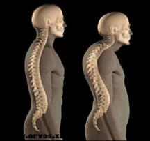 Orvos válaszol: Csontritkulás