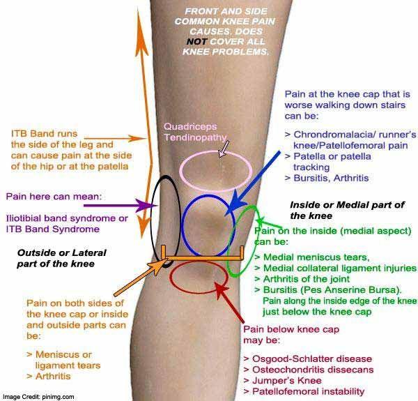 belső oldali térdfájdalom