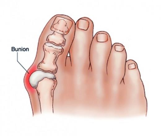 fájdalom a lábujjak ízületében