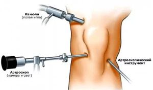 térdízület doa hogyan kell kezelni az artrózis kezelésének menete