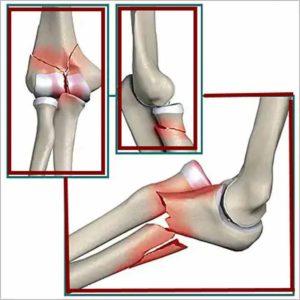 lehet-e gyógyítani a könyökízület artrózisát)
