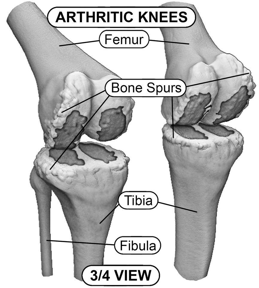 Csontritkulás tünetei és kezelése | BENU Gyógyszertárak