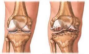 hogyan lehet könyökízületet kialakítani artrózissal