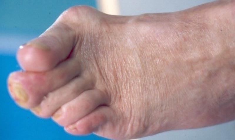 bőrgyulladás a lábak ízületein)