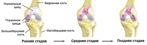 hip coxarthrosis 1, 2 és 3 fok a tünetek és a kezelés