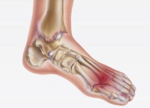 lábujjízületi fájdalom
