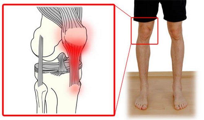 a láb kicsi ízületeinek ízületi kezelése)