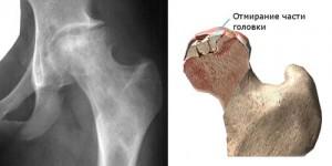 csípőízület artrózisának stádiuma)