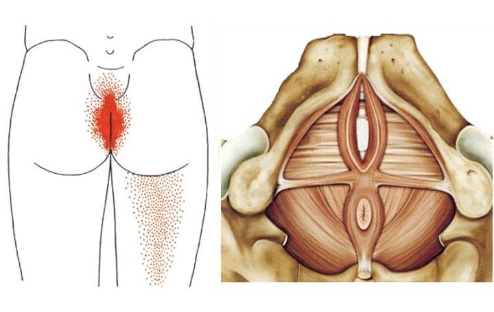 A vegetatív-érrendszeri disztónia jellemző tünetei és kezelése a nők körében - Köszvény July