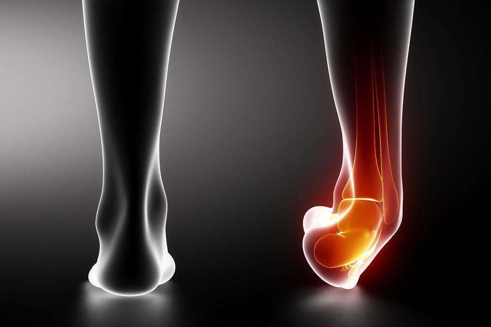 hogyan lehet enyhíteni a fájdalmat a bokaízület gyulladásával)