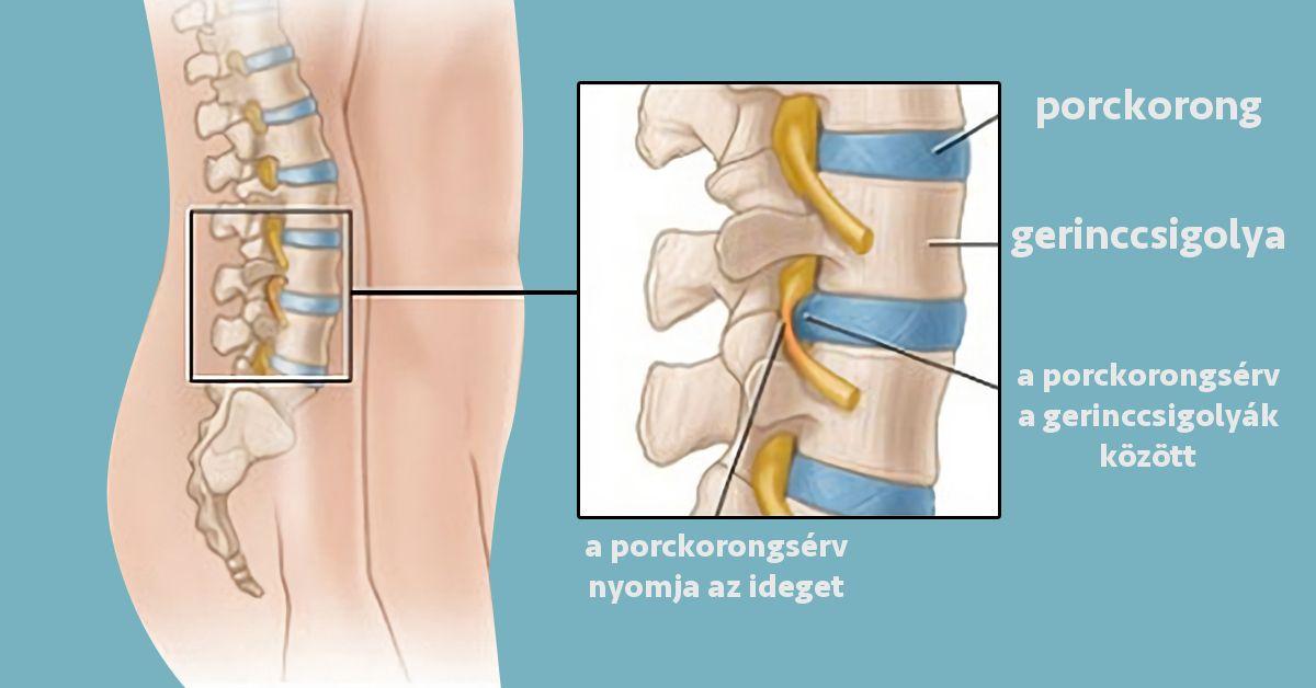 váll osteochondrosis áttekintés