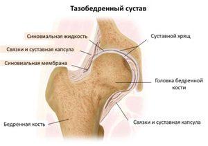 mi a térdízület artrózisának kezelése