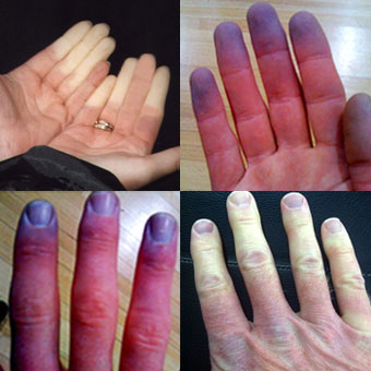 Raynaud jelenség Raynaud-kór és Raynaud-szindróma - Immunközpont