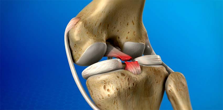 hogyan lehet kezelni a térd szalag sérülését