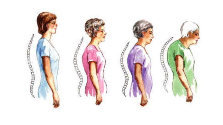 a combnyak artrózisának kezelése