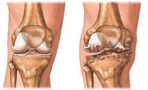 a térd artrózisának 3 szakaszának kezelése