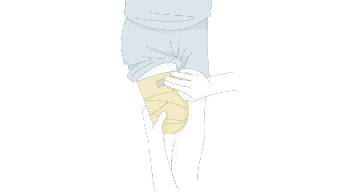 mi a teendő a térdízületek fájdalmától)