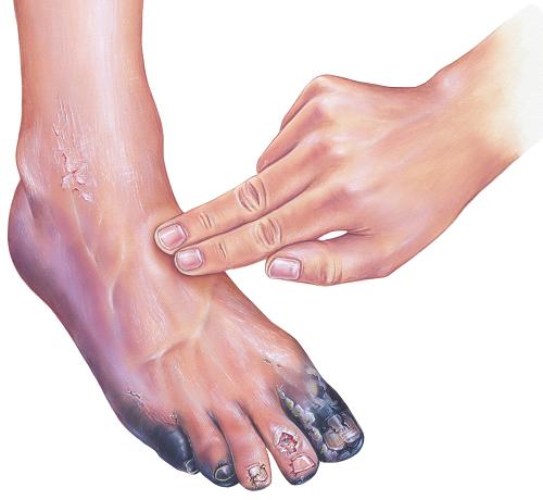 a lábfej lábfej kezelése)